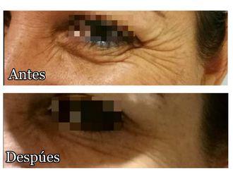 Rejuvenecimiento facial-619674