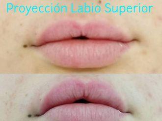 Aumento de labios-639696