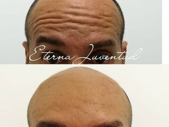 Rejuvenecimiento facial-639698
