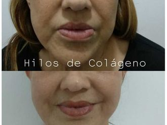 Rejuvenecimiento facial - 642588