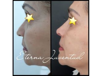 Rejuvenecimiento facial - 647984