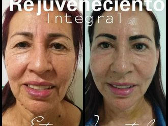 Rejuvenecimiento facial - 742165