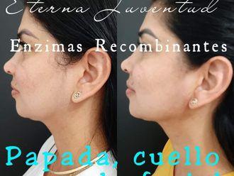 Rejuvenecimiento facial - 742166