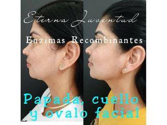 Rejuvenecimiento facial - 786407