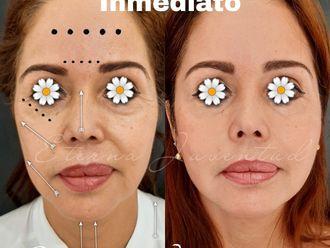 Rejuvenecimiento facial - 788341