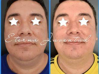 Rejuvenecimiento facial - 788346