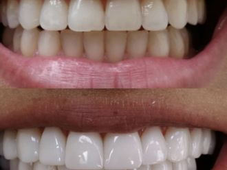 Blanqueamiento dental - 645142