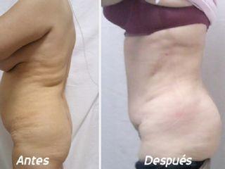 Antes y despues de dermolipectomia