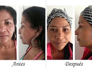 Antes y despues de lifting facial