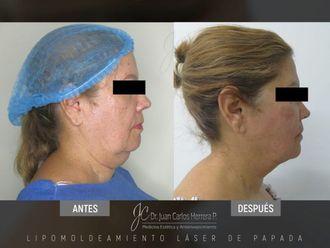 Rejuvenecimiento facial-641239