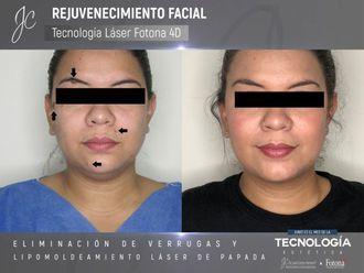 Rejuvenecimiento facial-641262