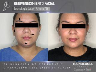 Lipomoldeamiento papada y eliminación de verrugas
