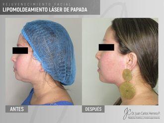 Rejuvenecimiento facial-641268