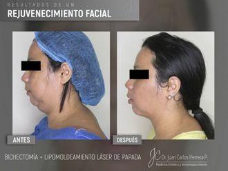 Rejuvenecimiento facial-641271