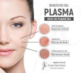 plasma rico en plaquetas, el mejor regalo para la piel de tu rostro!