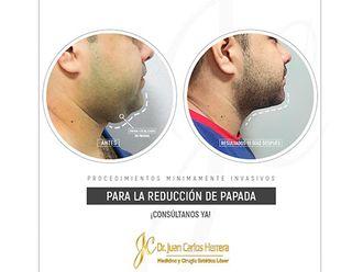 Cirugía de papada-699163