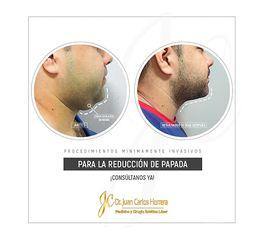 Lipomoldeamiento Láser de Papada - Dr. Juan Carlos Herrera P.