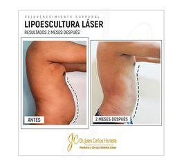 Lipoescultura Láser - Dr. Juan Carlos Herrera P.