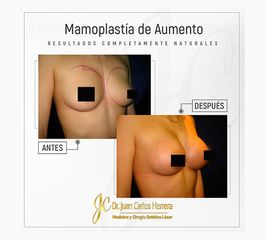Mamoplastía de Aumento - Dr. Juan Carlos Herrera P.