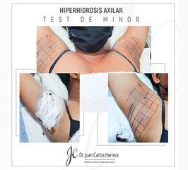 Hiperidrosis Axilar - Dr. Juan Carlos Herrera P.