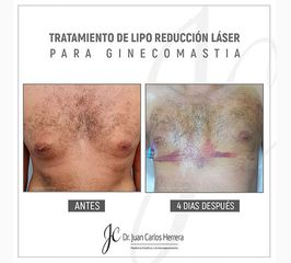 Ginecomastía - Dr. Juan Carlos Herrera P.