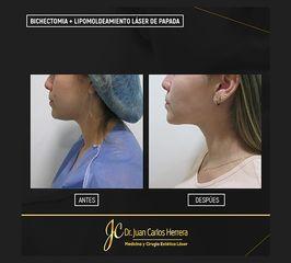 Bichectomia + LipoPapada - Dr. Juan Carlos Herrera P.
