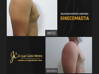 Ginecomastia-738287