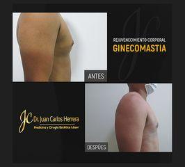 Resultados de una Ginecomastia - Dr. Juan Carlos Herrera P.