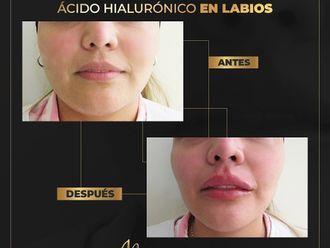 Aumento de labios-793525