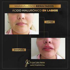 Aumento de labios - Dr. Juan Carlos Herrera P.