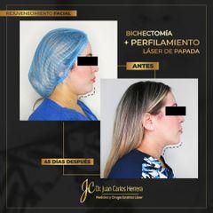 Bichectomía - Dr. Juan Carlos Herrera P.