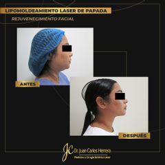 Cirugía papada - Dr. Juan Carlos Herrera P.