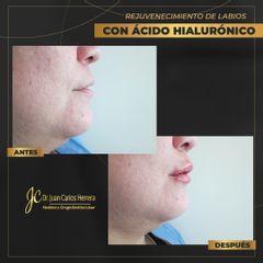 Rejuvenecimiento de labios - Dr. Juan Carlos Herrera P.