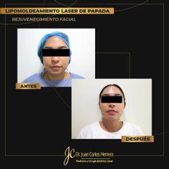 Lipomoldeamiento de papada - Dr. Juan Carlos Herrera P.