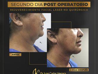 Cirugía de papada-799210