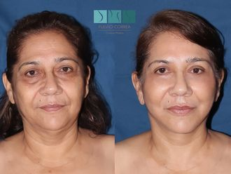 Rejuvenecimiento facial-634063