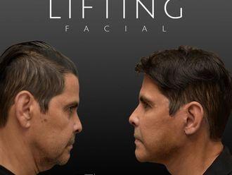 Lifting facial-794414