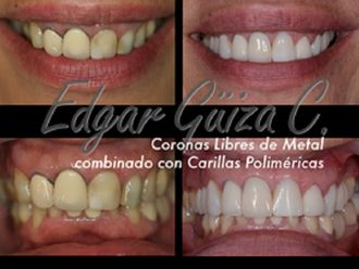 Blanqueamiento dental - 581370