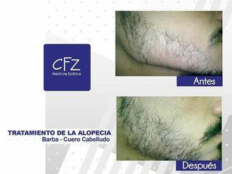 Alopecia - 625460