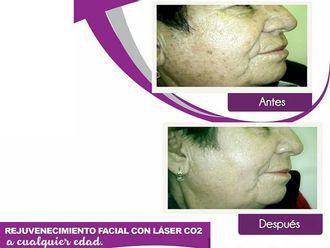 Rejuvenecimiento facial-625463