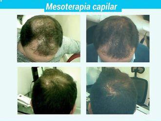 Alopecia - 625492