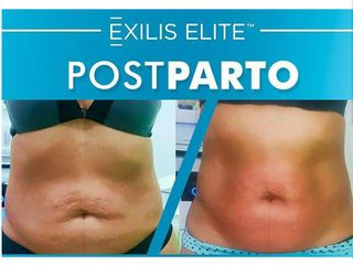 Post Parto- EXILIS