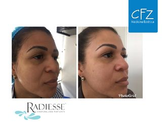 Rejuvenecimiento facial-632288