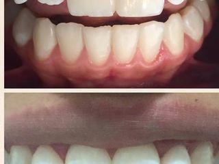 Carillas sin desgaste de tus dientes