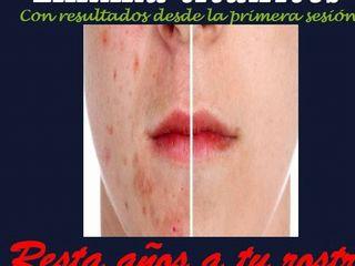 Antes y despues de eliminacion de citratrices de acne