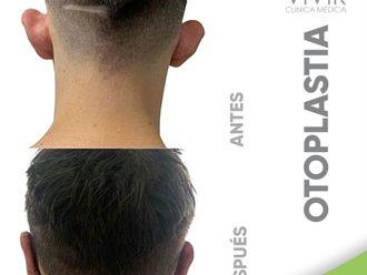 Otoplastia-799095