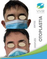 Otoplastia - Clínica Médica Vivir
