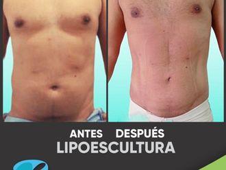 Liposucción-799100