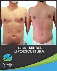Liposucción - Clínica Médica Vivir