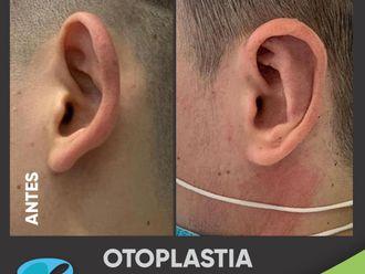 Otoplastia-799102